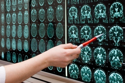 Brain imaging study